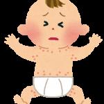 乳児湿疹の原因が母乳?!あなたの食事は大丈夫?